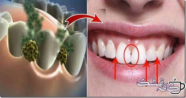 دلایل و روش رفع بوی بد دهان