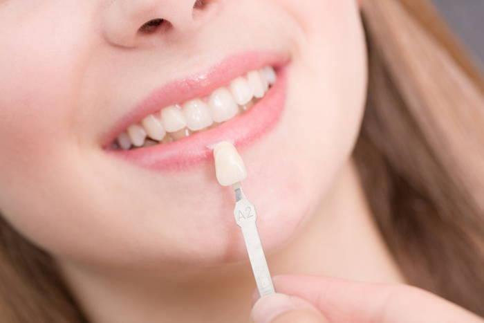لمینت دندان مزایا معایب عوارض