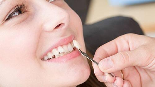 Photo of لمینت دندان چیست ؟ | مزایا، معایب و عوارض لمینت دندان چیست؟